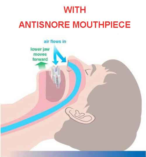 Mouth With MAD Anti-Snoring Mouthpiece