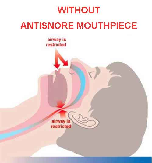 Mouth Without MAD Anti-Snoring Mouthpiece